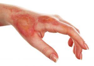 tratamiento de quemaduras, fisioterapia dermatofuncional